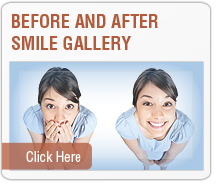 Dental Service - Before and After Images